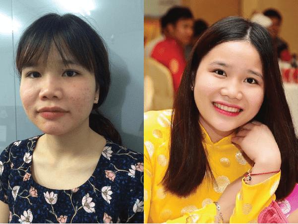 Nam Định: Nữ sinh xấu xí lột xác chỉ sau 2 tháng hè
