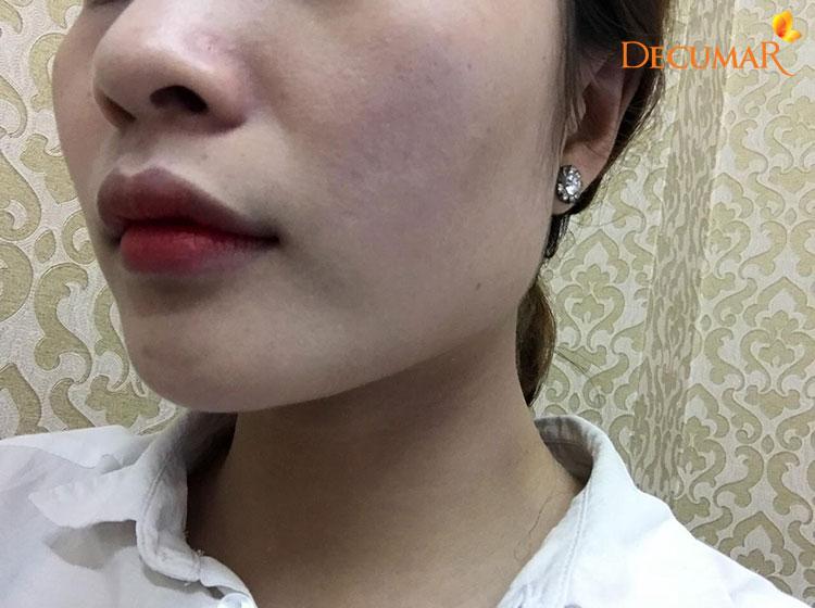 Có rất nhiều bạn trẻ sử dụng Corticoid để làm đẹp vì khả năng làm trắng da nhanh chóng
