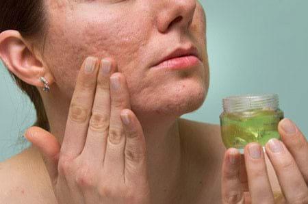 Tại sao phải kiên trì trong điều trị sẹo và mun?