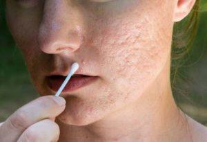 Những lưu ý quan trọng khi trị sẹo rỗ trên mặt