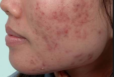 Làm thế nào để trị sẹo và mụn cho da tổn thương?