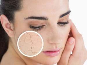 Những người da khô cũng dễ bị mụn.