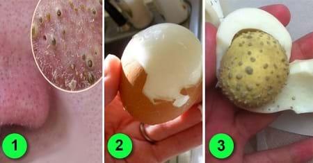 Trị mụn đầu đen với trứng gà