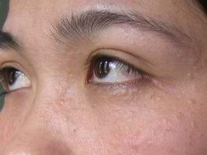 Mụn ẩn dưới da khiến làn da sần sùi không mịn màng.