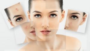 Tìm hiểu ngay phương pháp trị thâm mụn hiệu quả nhất cho làn da của bạn