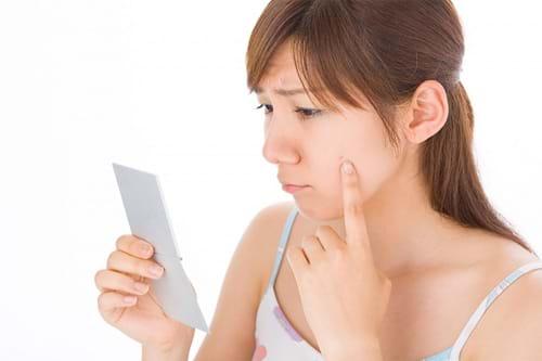 Trị sẹo rỗ từ mụn đầu đen và cách ngăn ngừa