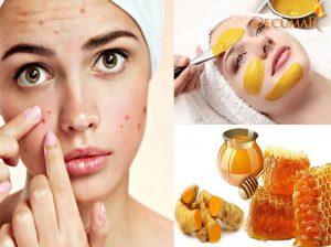 15 công dụng tuyệt vời của nghệ vàng và mật ong