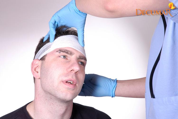 Cần xử lý ngay khi trầy xước da đầu nặng