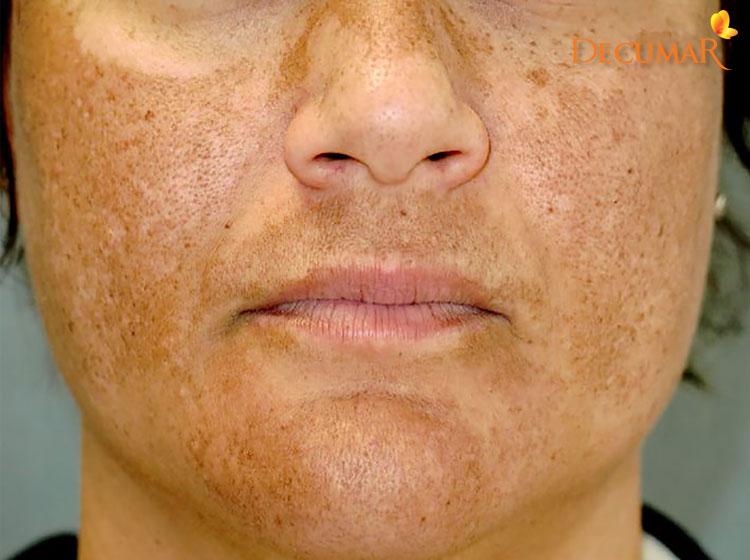 Da mặt bị nám