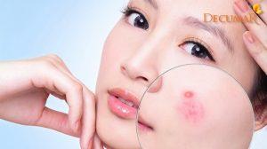 Nguyên nhân gây mụn bọc ở mặt và hướng xử lý