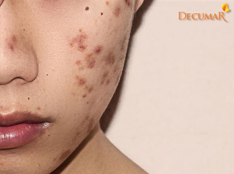 Sẹo thâm trên da mặt có dầu nhờn