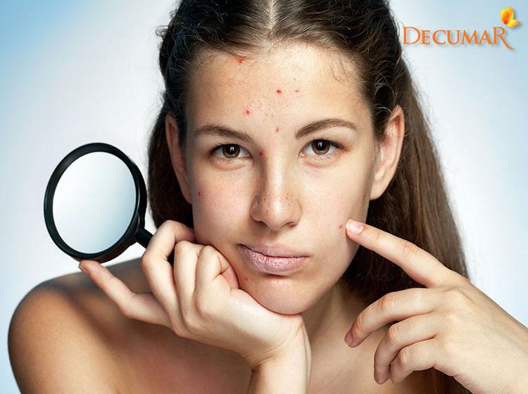 Trích lấy mụn viêm không đầu cần cẩn thận để tránh viêm nhiễm