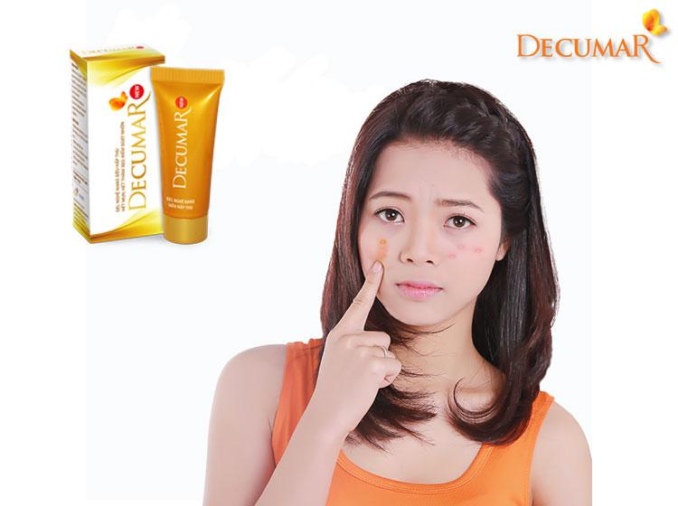 Bạn có thể bôi trực tiếp gel trị mụn cám Decumar lên vùng da bị mụn