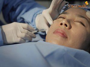 Phẫu thuật trị thâm sẹo – những nguy cơ tiềm ẩn mà bạn chưa biết tới