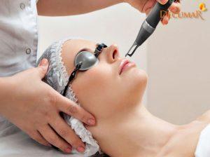 Có nên điều trị sẹo thâm bằng laser không?