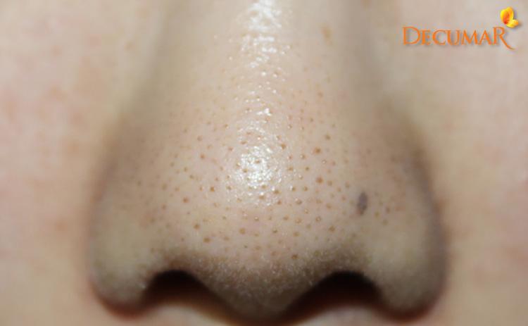 11 cách trị mụn cám ở mũi đơn giản mà         cực kỳ hiệu quả