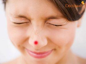 Mách bạn 8 cách trị mụn bọc ở mũi mà bạn NÊN áp dụng
