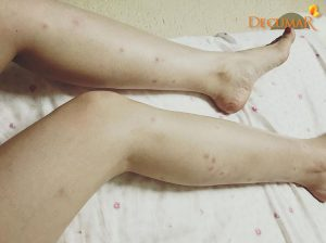 Trị sẹo thâm ở chân bao nhiêu tiền?