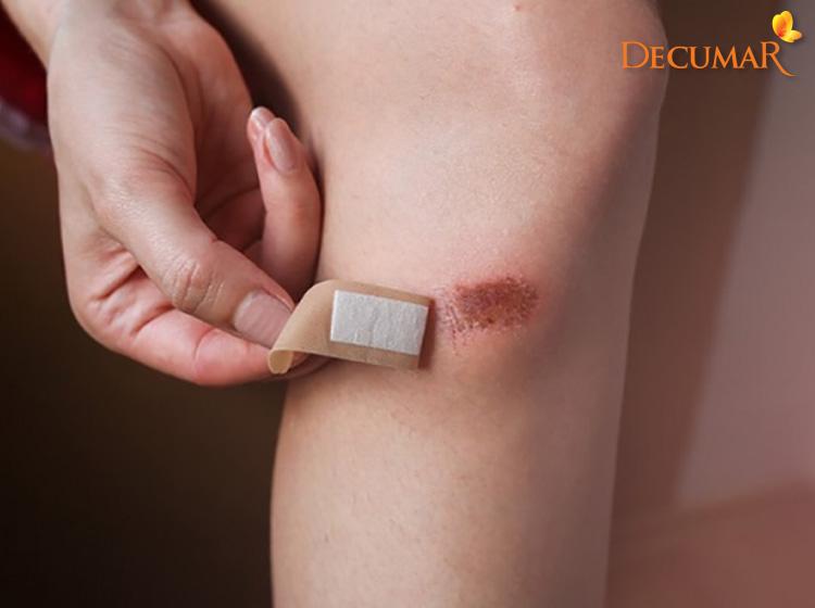 Sẹo thâm hình thành do vết thương