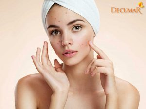 Phục hồi làn da với 6 bước trị thâm sẹo sau mụn hiệu quả