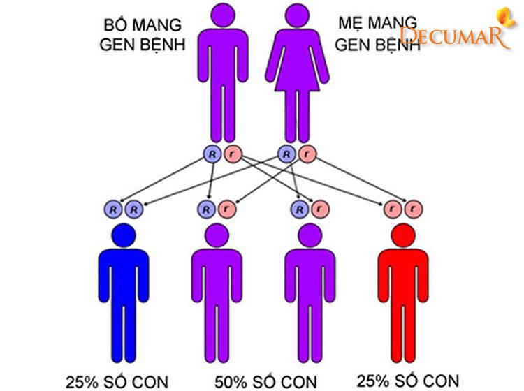 Di truyền là một nguyên nhân gây mụn viêm da cơ địa