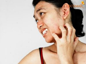 Mụn viêm ngứa DỮ DỘI phải làm thế nào?