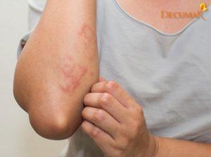 Mụn viêm da cơ địa là gì? Cách điều trị mụn viêm da cơ địa