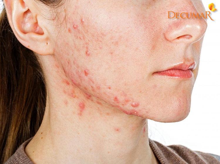 Mụn viêm xuất hiện ở quai hàm báo hiệu sức khỏe của bạn đang bị giảm sút.