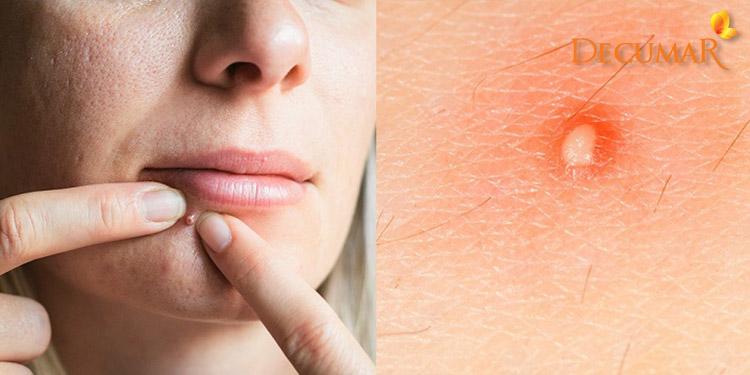 Nếu không chữa trị đúng cách mụn viêm trắng vô cùng nguy hiểm cho da của bạn