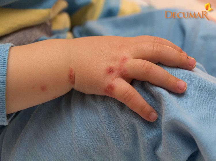 Muỗi đốt là một nguyên nhân gây ra các nốt thâm ở trẻ em rất phổ biến