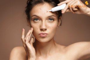 Làm thế nào để chọn được gel trị mụn và vết thâm tốt nhất cho da