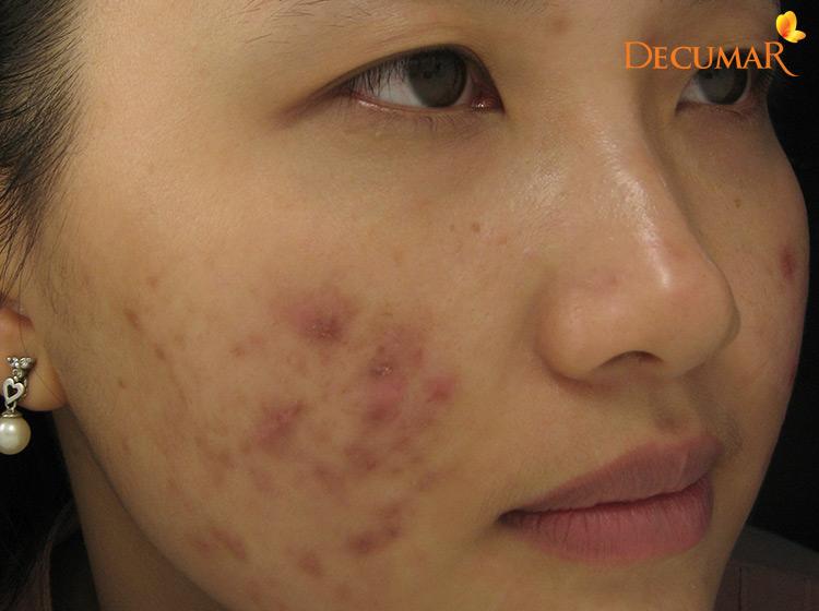 Trị mụn thâm ở mặt có sự khác biệt giữa các loại da