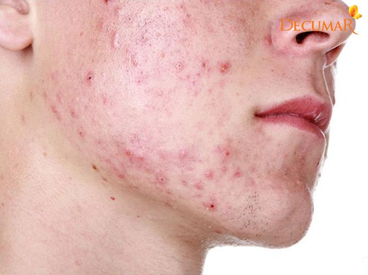 Mụn viêm chân lông ở da mặt có thể đến từ rất nhiều các nguyên nhân khác nhau