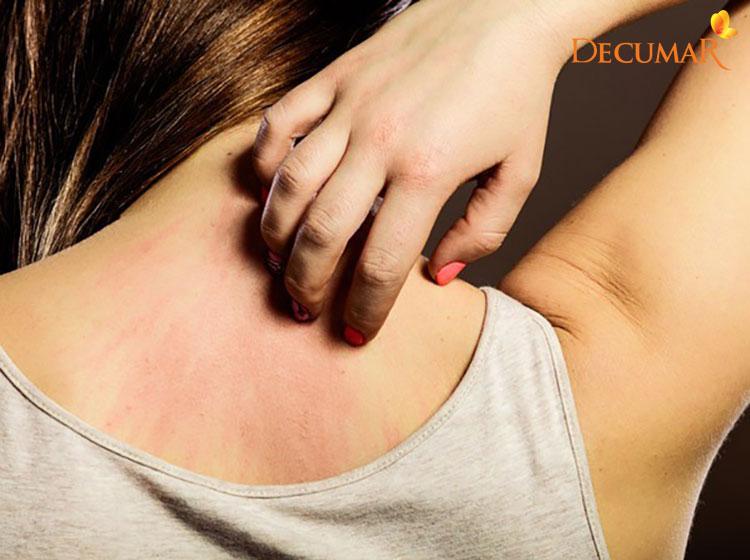 Gãi lưng quá mạnh có thể khiến cho da bị tổn thương và gây viêm