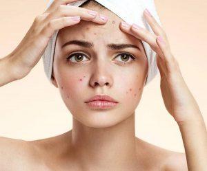 Mụn ẩn dưới da   Bật mí Nguyên nhân và Cách điều trị mụn ẩn tại nhà