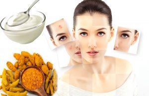 Tiết lộ 10+ loại mặt nạ trị mụn bọc hiệu quả và an toàn