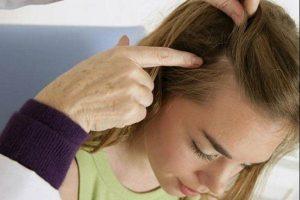 Mụn trứng cá trên da đầu : Nguyên nhân, dấu hiệu và cách điều trị