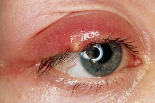 Mụn trứng cá đỏ ở mắt